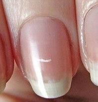 white-spots-in-nails-1-nailcarehq