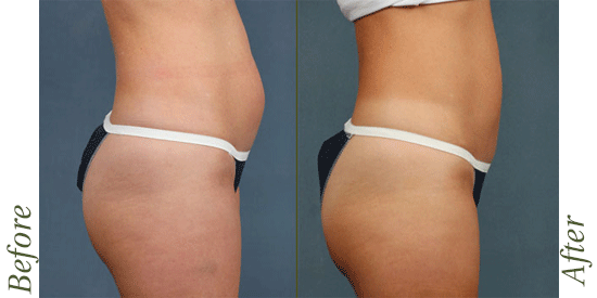 CoolSculpting before-and-after images in Lexington, KY.