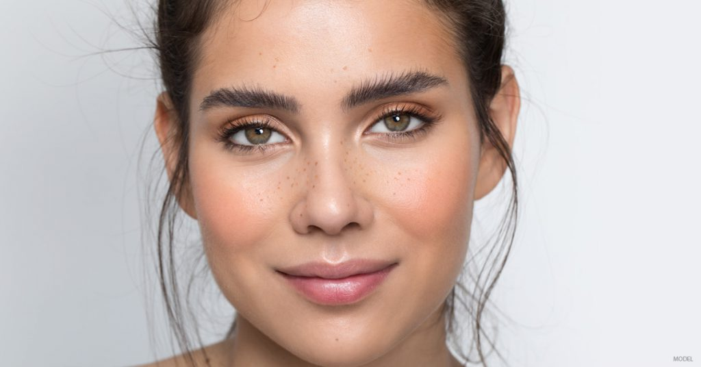 Young woman considering dermal fillers