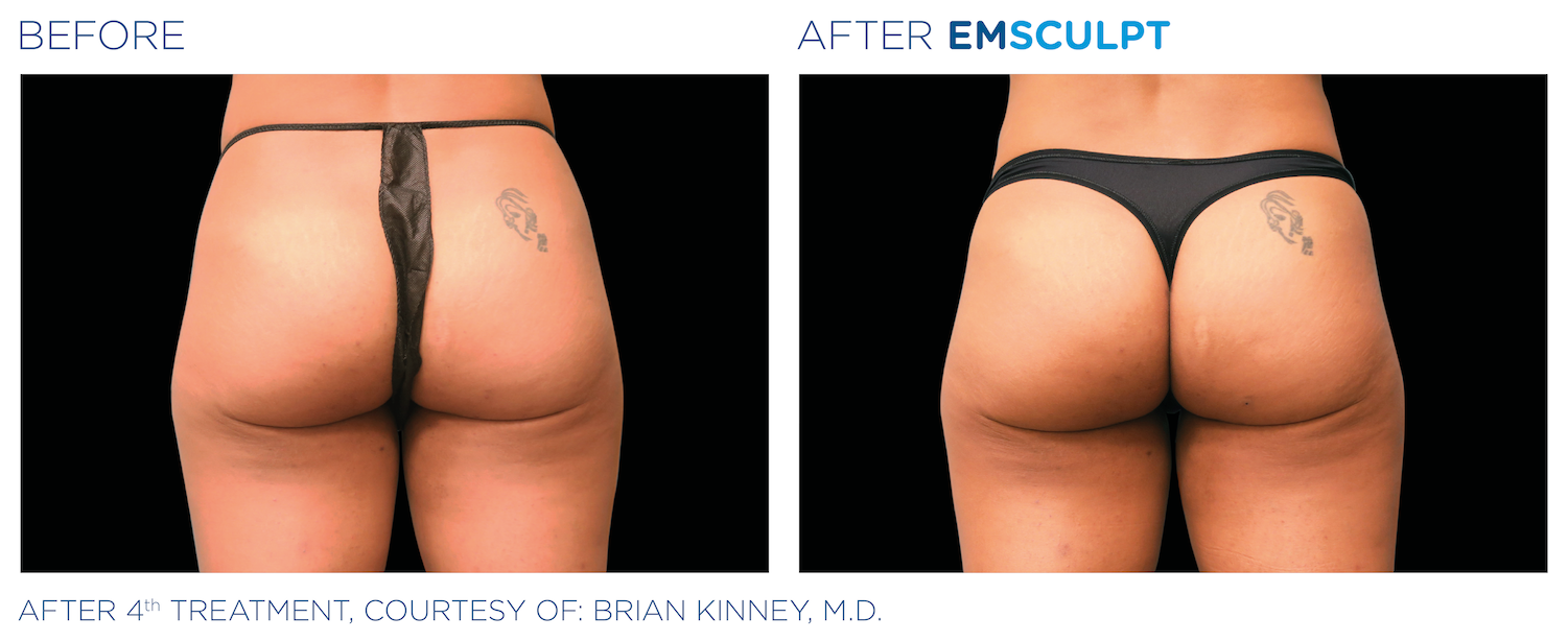 Emsculpt before and after picture