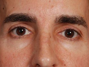 Male Patient's Eyes and Nose Before Injectable Fillers