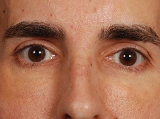 Male Patient's Eyes and Nose After Injectable Fillers