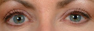 Patient With Blue Eyes Before Latisse Treatment