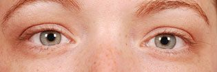 Patient With Light Eyes Before Latisse Treatment