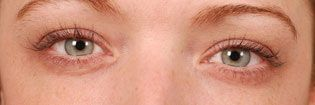 Patient With Light Eyes After Latisse Treatment