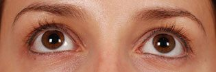 Patient With Brown Eyes Before Latisse Treatment