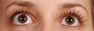 Patient With Brown Eyes After Latisse Treatment